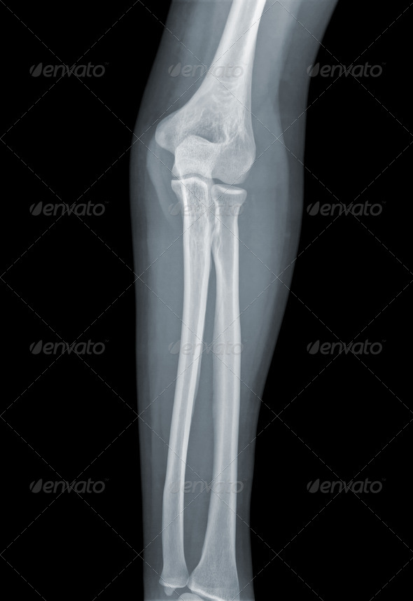 Elbow X-ray negative - Stock Photo - Images