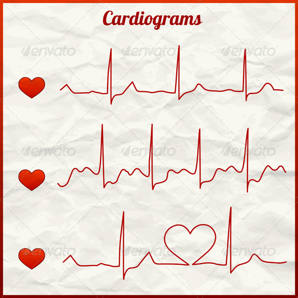 Set of Cardiograms - Health/Medicine Conceptual