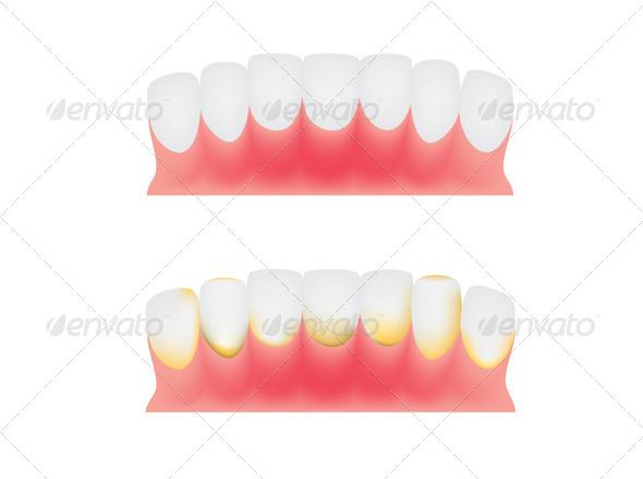 Teeth and Gums - Health/Medicine Conceptual
