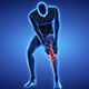 Medically Accurate Animation Of Spinter With Painful Joints - 28