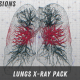 Lungs X-Ray Pack - VideoHive Item for Sale