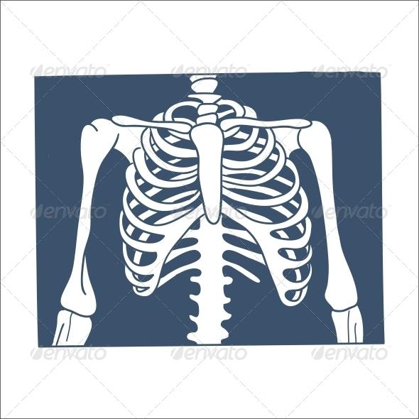Thorax X-Ray Picture. - Health/Medicine Conceptual