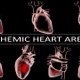Ischemic Heart Areas - VideoHive Item for Sale