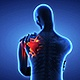 Shoulder Painful Skeleton X-Ray Scan - Medical Concept - VideoHive Item for Sale