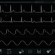 Cardiac Monitor (Themplate+4 waveforms, alpha) - VideoHive Item for Sale